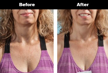 Cleavage Wrinkles Before After Bravity 3 3