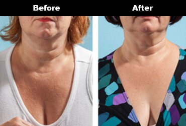 Cleavage Wrinkles Before After Bravity 8 2
